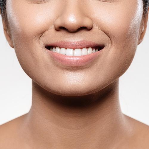 白い歯で笑顔に自信